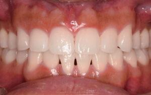 歯shuusei